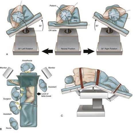 operating room positioning minimally invasive splenectomy for splenomegaly abdominal key