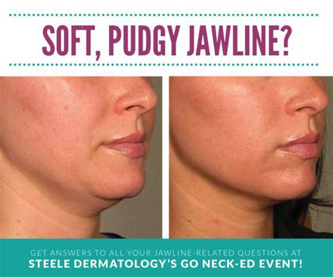 aging jaw line best anti aging treatments for neck chin and jawline
