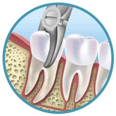 tooth extraction  treatment  aftercare