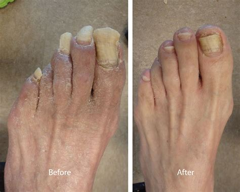 nail clipping toenail trimming louisiana podiatrist metairie foot doctor