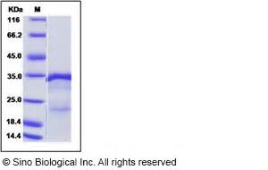 m protein influenza influenza a h1n1 a brevig mission 1 1918 matrix protein