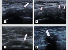 Ultrasonographic Evaluation of Calcification Patterns in ... Google Scholar