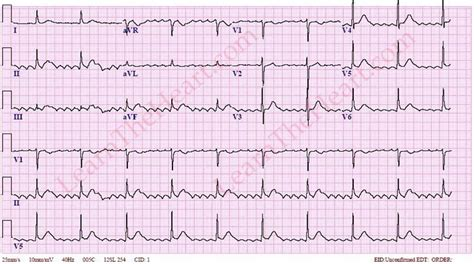 atrial flutter with 6 1 conduction learntheheart