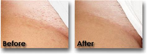 laser hair removal how it works photos and benefits