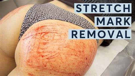 stretch mark removal extreme vampire butt facial youtube