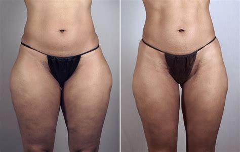 Liposuction Patient 40 Center For Plastic Surgery