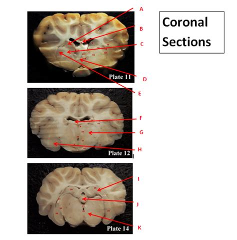 brain coronal section sheep brain neuroanatomy online self test kpu ca