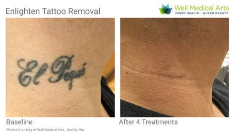 pico laser tattoo removal cost removal in seattle using pico technology at well