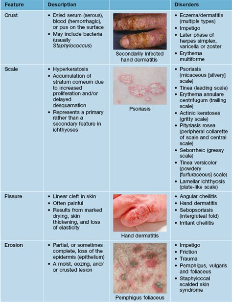 Dermatology Essentials Jean L Bolognia Original basic principles of dermatology plastic surgery key