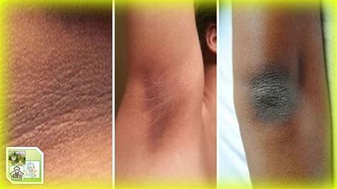 imagenes de axilas oscuras tratamiento natural para la acantosis nigricans manchas
