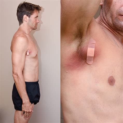 how to treat glands in armpit swollen faith and health dealing with an unexpected illness no