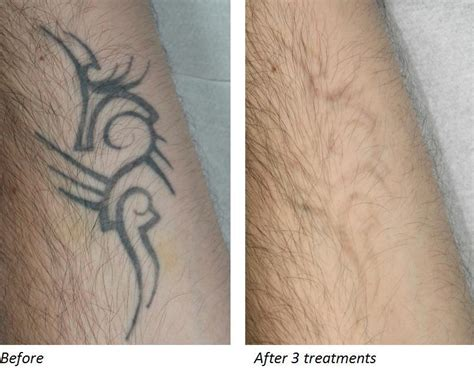 what does a removed tattoo look like does laser removal work collection