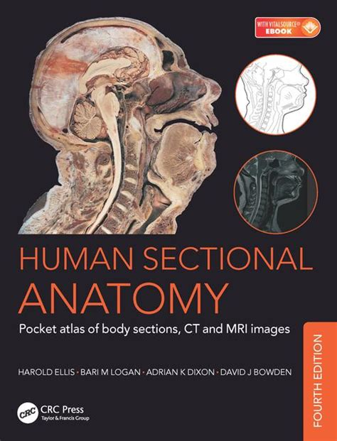 pocket atlas of sectional anatomy human sectional anatomy pocket atlas of body sections ct