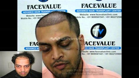 hair transplantation in mumbai reviews before and after hair transplant fue mumbai india kolkata