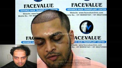 hair transplant india delhi mumbai youtube before and after hair transplant fue mumbai india kolkata