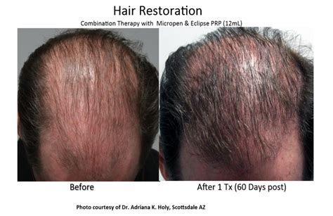 prp hair restoration ei con health amp wellness center