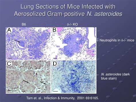 if you observed pathological lung sections ppt i t cells ii invariant tcr t cells powerpoint