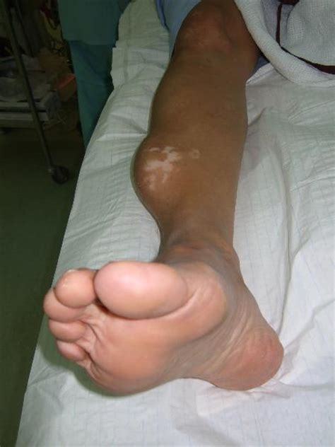 growth on s leg organising haematoma mimicking as a leg cancerous tumour orthopaedic information