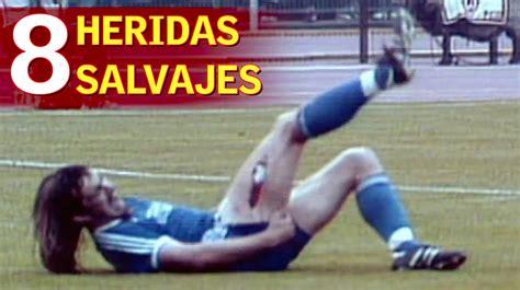 imagenes con historias impactantes las 8 heridas m 225 s impactantes de la historia del deporte
