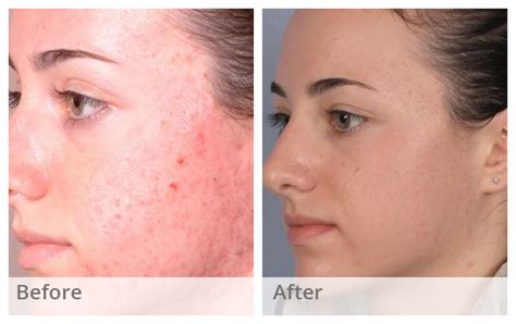light chemical peel before and after best chemical peels for acne scars