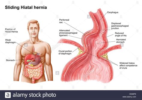 Hiatal Hernia Diagram
