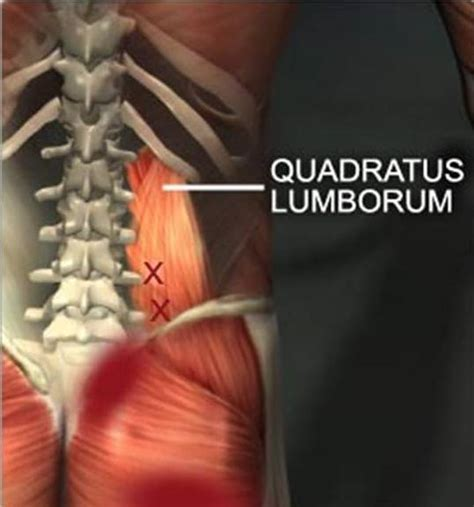 quadratus lumborum management for ql strain recovery strengthening and management books login engineering