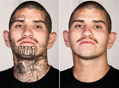 free tattoo removal for gang members skin retouching removal