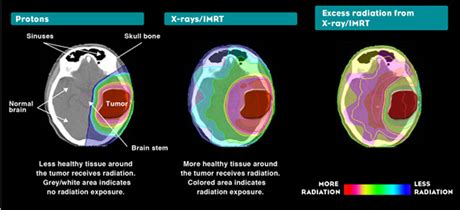 Proton Therapy Chicago by Proton Therapy Benefits Northwestern Medicine Chicago