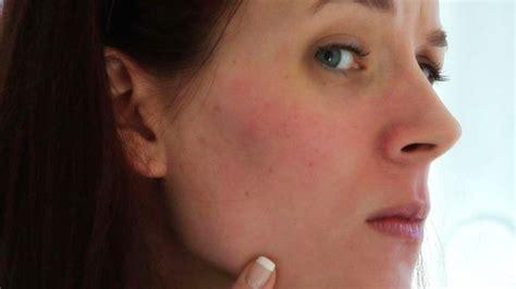 cara bercuti di krabi 2015 cara menghilangkan kemerahan di wajah
