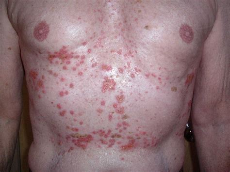 type of disease skin conditions file grover s disease advanced case jpg wikimedia commons