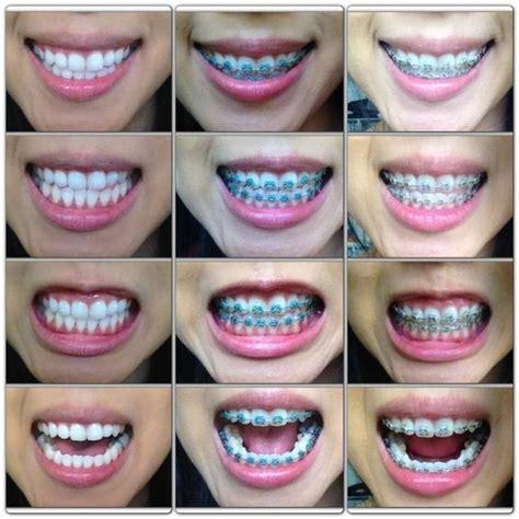 color bands for braces color options for braces search bracess