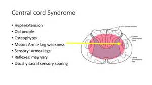 pics for gt central cord syndrome