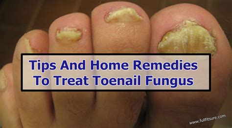 tips and home remedies to treat toenail fungus fit sure