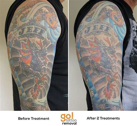 half sleeve tattoo removal 17 best images about removal in progress on