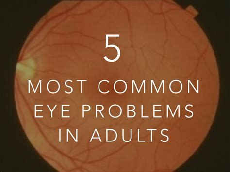 eye problems the five most common eye problems in adults