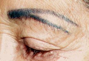 eyeliner tattoo gone wrong permanent makeup gone wrong