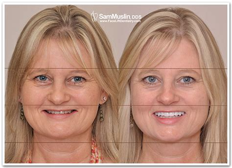 A Facelift For Your Teeth by Dental Facelift Corrects Tmj And Overbite