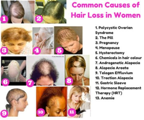 haircuts for extreme hair loss in woman receding hairline the top 10 causes of hair loss in women and what you can