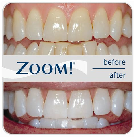 do teeth whitening lights work zoom teeth whitening costs reviews the dental guide