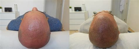 scalp micropigmentation in pakistan creating an aggressive hairline with scalp