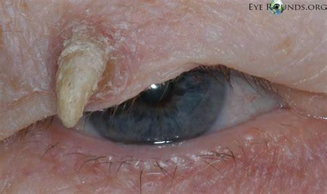 cutaneous horn pathology outlines dermatopathology patterns