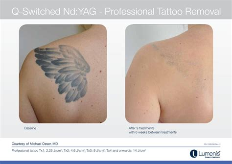 tattoos and laser hair removal laser hair removal damage tattoos removal