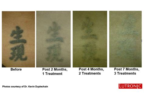 quickest tattoo removal new laser removal ottawa dermis advanced skin