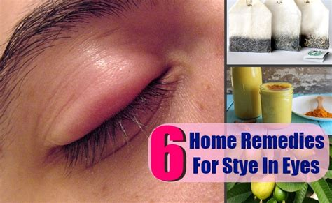 6 effective home remedies for stye in health care a