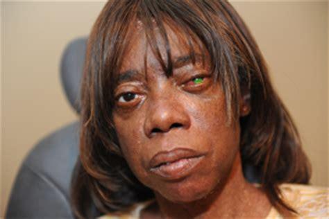colored contacts non prescription walmart risks of non prescription contact lenses revealed 04 29 10