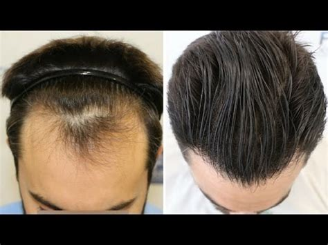 dr kieley hair restoration fue hair transplant 1778 grafts in nw class ll by dr