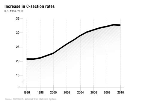 C Section Rates by 10 Pregnancy Procedures To Reject Consumer Reports