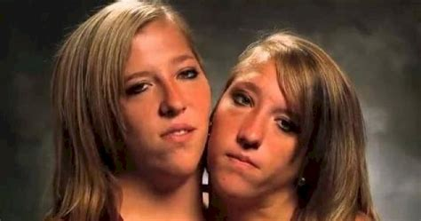 conjoined twins abigail and brittany hensel 15 interesting things about famous conjoined twins abby