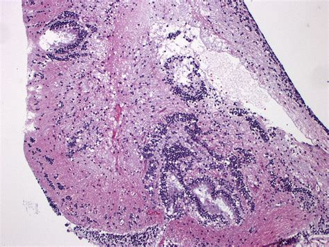 Immature Teratoma Pathology Outlines by Pathology Outlines Teratoma
