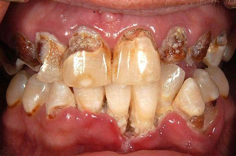 meth images meth pictures symptoms facts and treatment